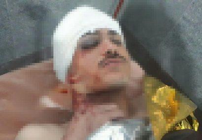 پولیس هرات سه تن را زخمی و بازداشت کرد