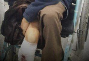 یک سارق مسلح زخمی در هرات دستگیر شد