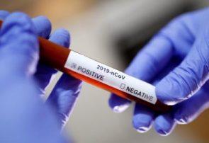 واقعات مثبت ویروس کرونا درافغانستان به ۱۷۴ تن رسید