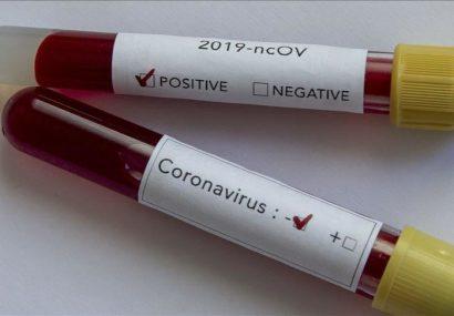مبتلایان ویروس کرونا درافغانستان به ۳۶۷ تن رسید
