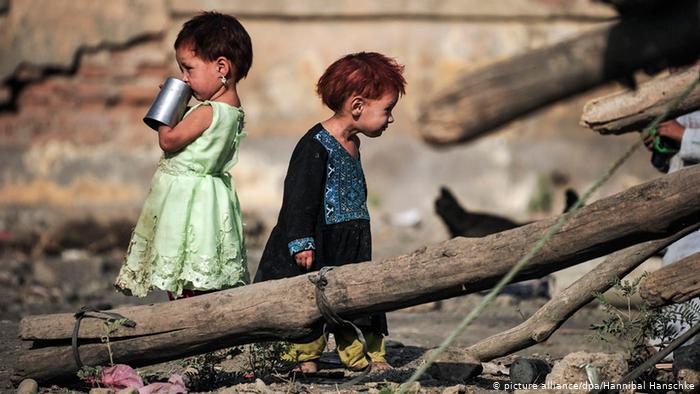 دو و نیم ملیون کودک افغان در معرض سوء تغذیه شدید قرار دارند