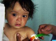 از اول سال جاری تا کنون ۱۷ کودک سوء تغذیه در غور جان باختند